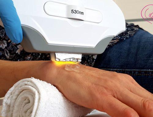 Przebarwienia na dłoniach – sposoby usuwania