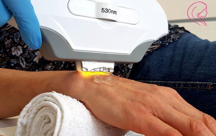 Przebarwienia na dłoniach - sposoby usuwania